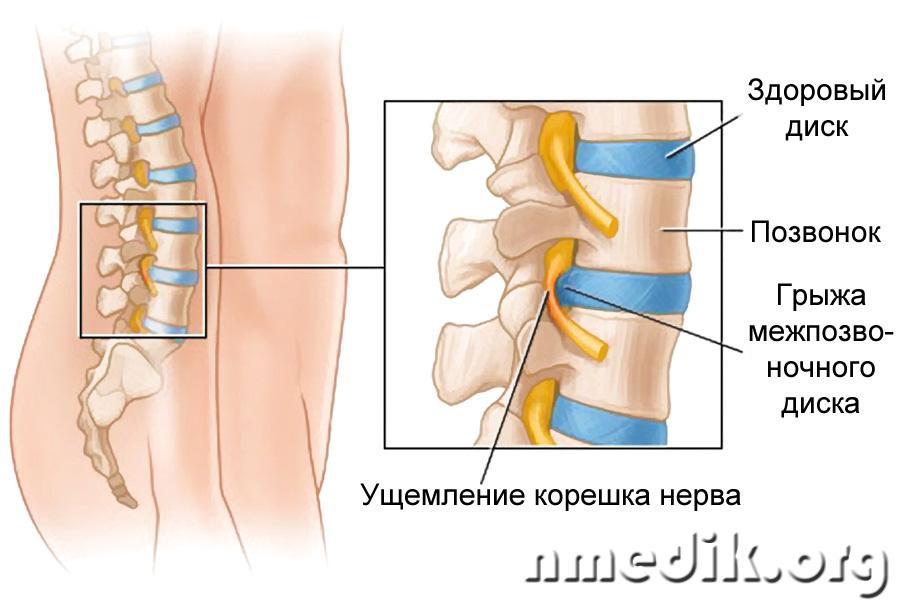 Грыжа межпозвоночного диска: симптомы, стадии, лечение