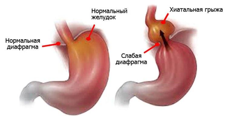 Хиатальная грыжа пищевода и скользящая форма
