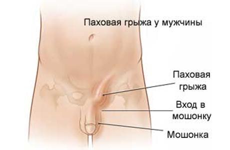 Осложнения после операции паховой грыжи