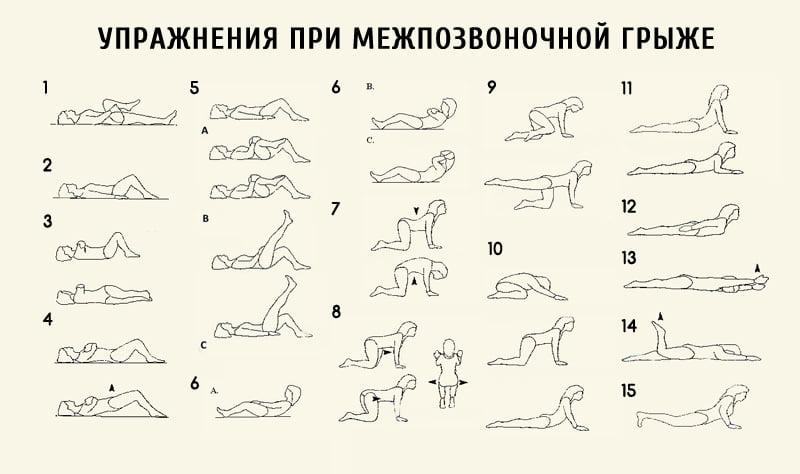 Лечебная физкультура при грыже позвоночника (лфк)