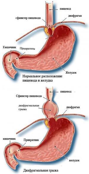 Параэзофагеальная грыжа – причины, симптомы, лечение, профилактика
