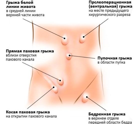 Способы лечения и симптомы развития пупочной грыжи у мужчин. Что такое пупковая грыжа у взрослых мужчин?